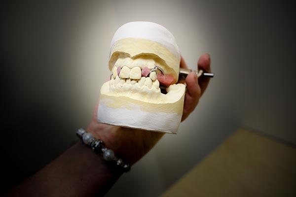 denture-model